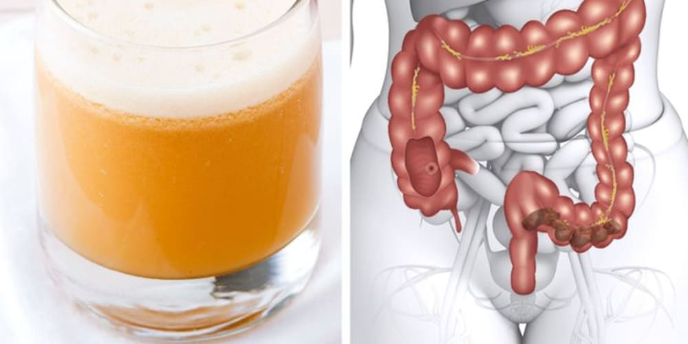 Eating These 10 Healthy Foods That Will Naturally Detox and Cleanse Your Body
