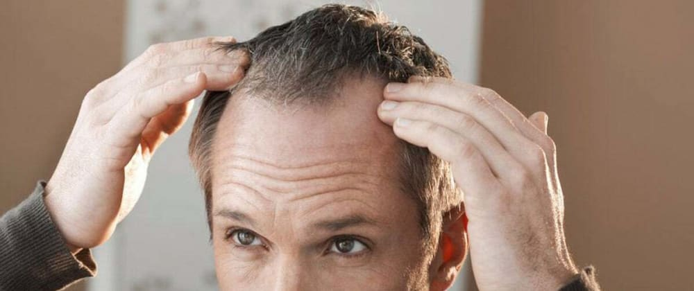 Cover image for Best Hair Loss Treatments in The UK