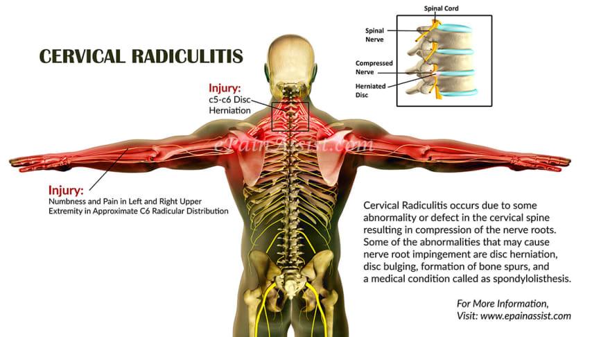 Radial Nerve Pain