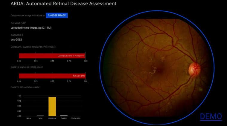Eye Scan finding disease