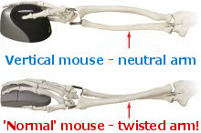 Illustration of a twisted arm when using a mouse from https://www.computer-posture.co.uk/mouse-elbow/