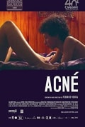 Watch Acné Full HD Free Online