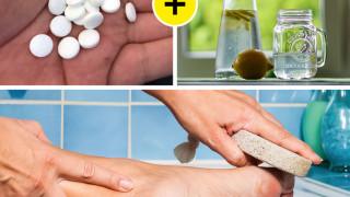 10 cách nhanh chóng để trị vết chai ở chân