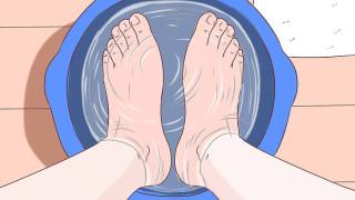 Loại bỏ vết chai ở chân