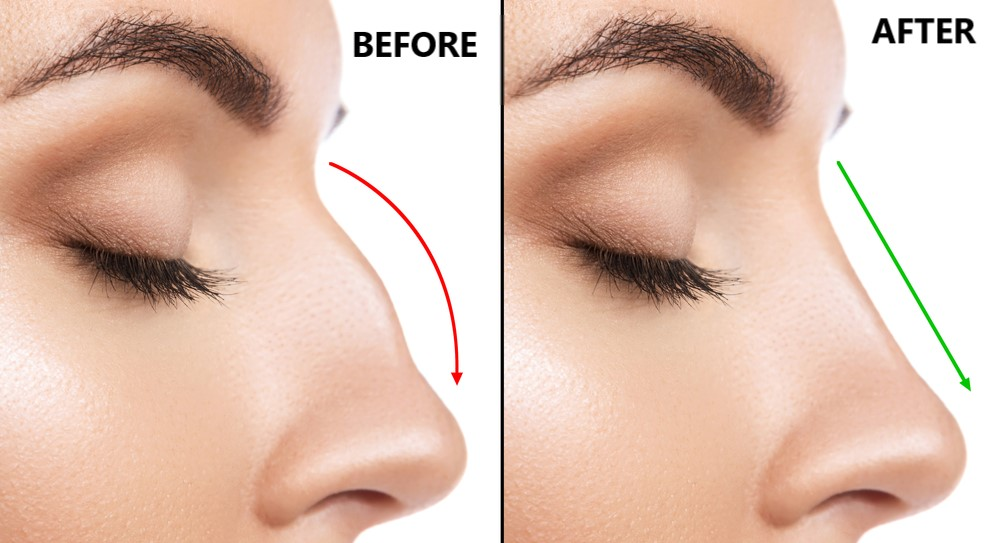 Nose Surgery In Delhi Nose Surgery Cost Find Best Reviewed Hospitals Surgeons Reviews Practo