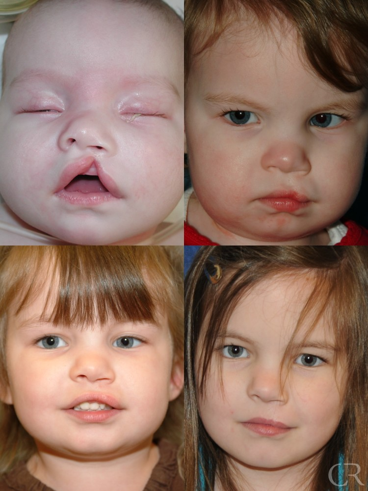 cleft lip palate Overview clefts of the lip and palate occur in roughly 1 in 1000 births, making clefts one of the most common congenital anomalies that we see in our center.