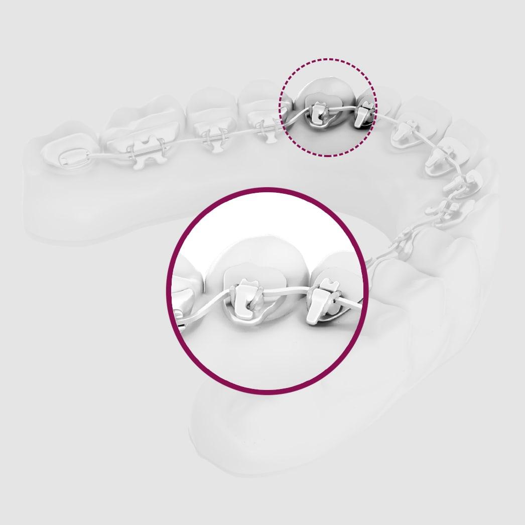 unsichtbare-Zahnspange-Slider-2