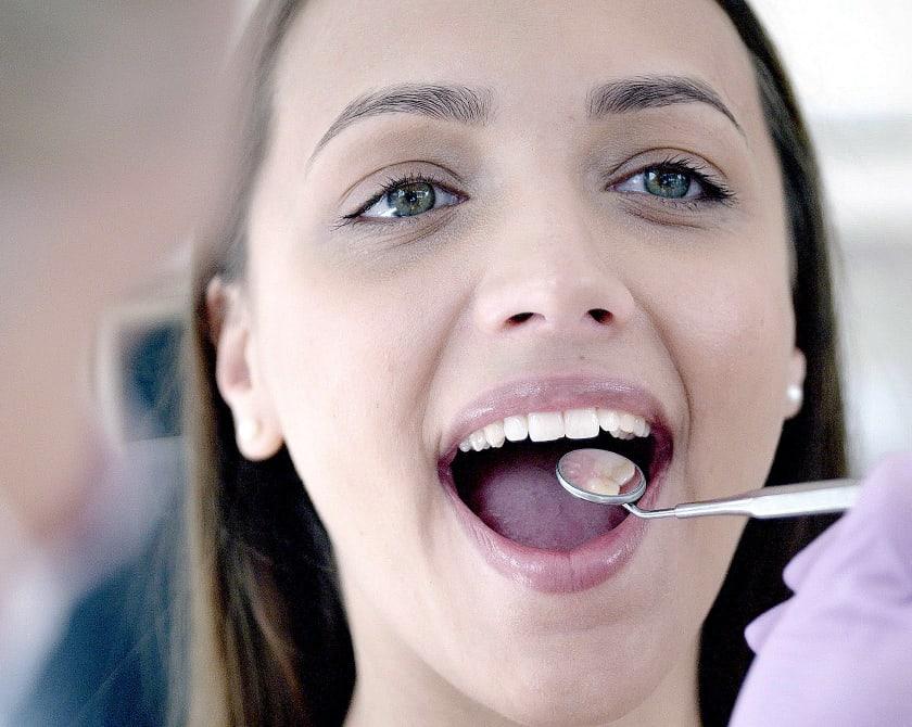 Linguale-Zahnspange-Thema-vertiefen_Behandlungsverlauf