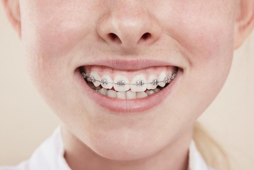 Vunder Orthodontics Brackets