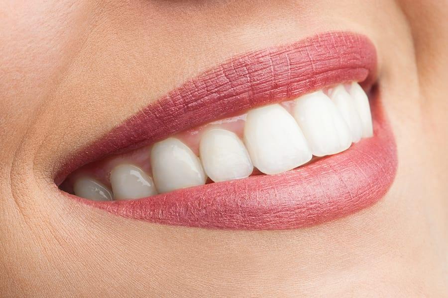 Vunder Orthodontics unsichtbare Zahnspange