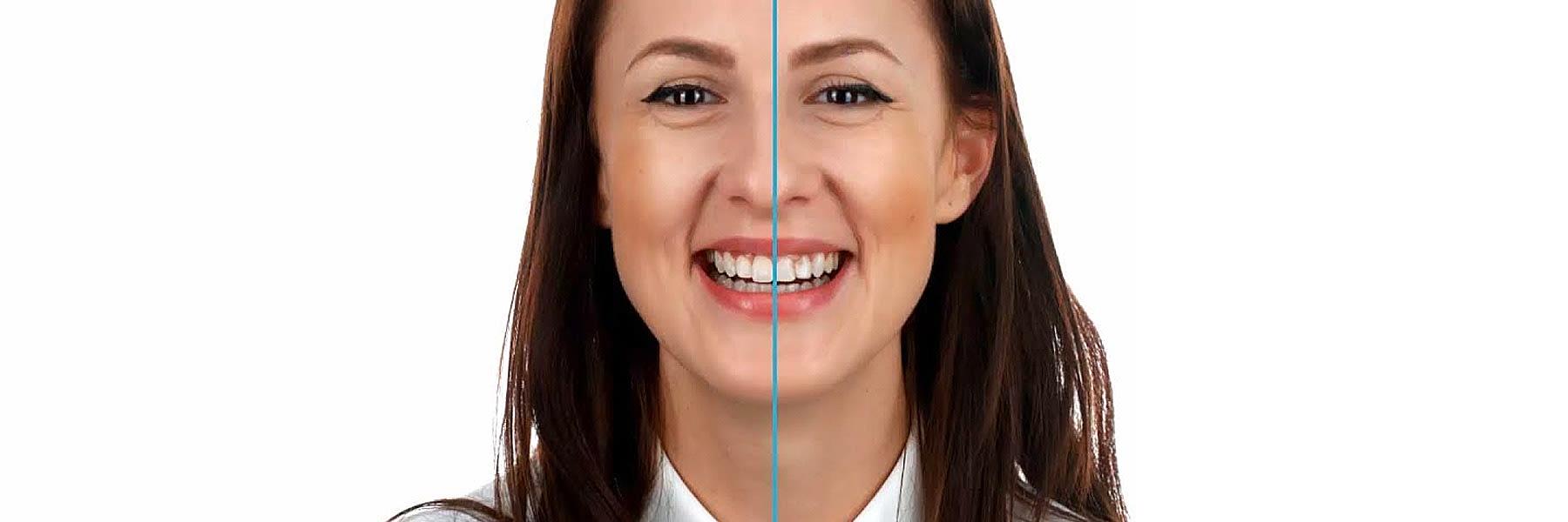 Warum-Lingual-kontrollierte-Zahnbewegung