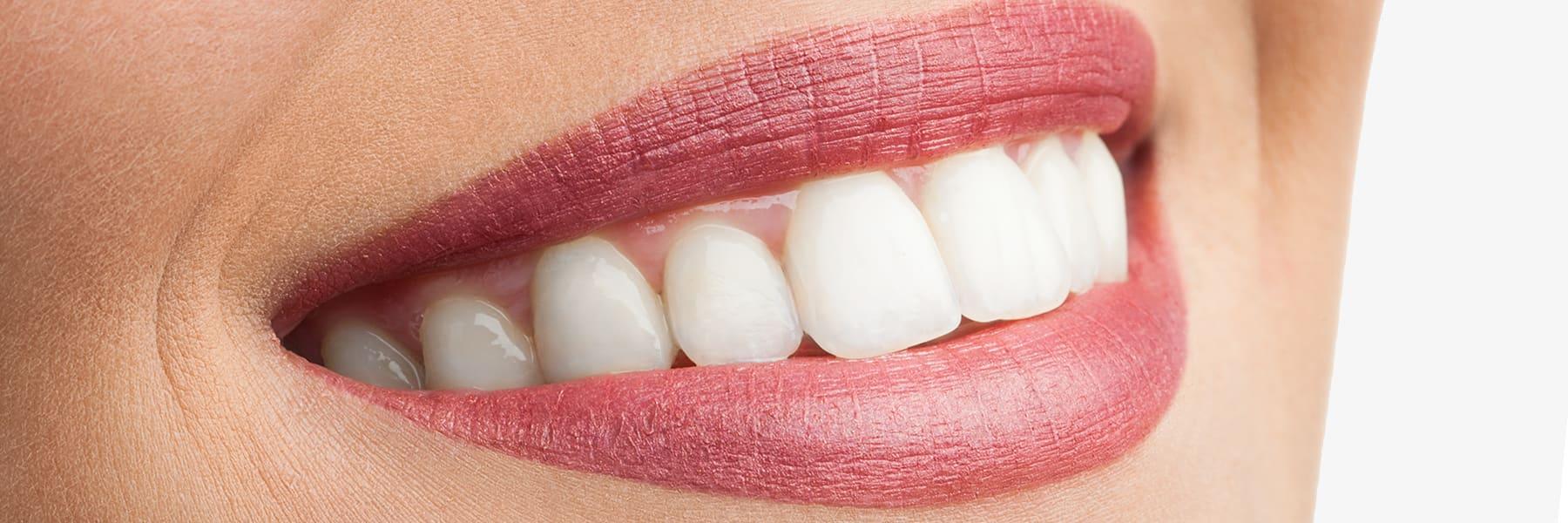 Komplett-unsichtbare-Zahnspange