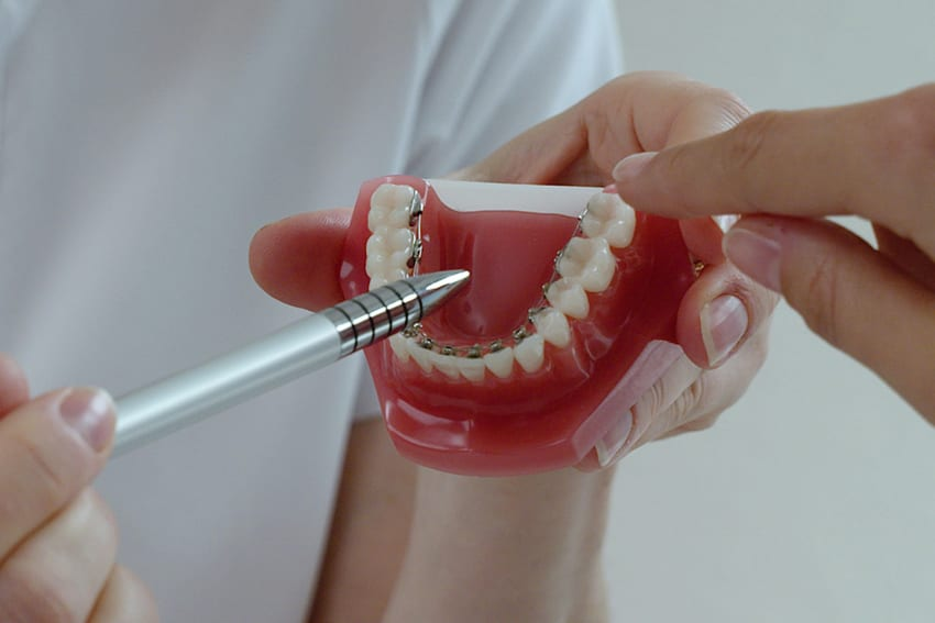 Vunder Orthodontics Zahnspange innen