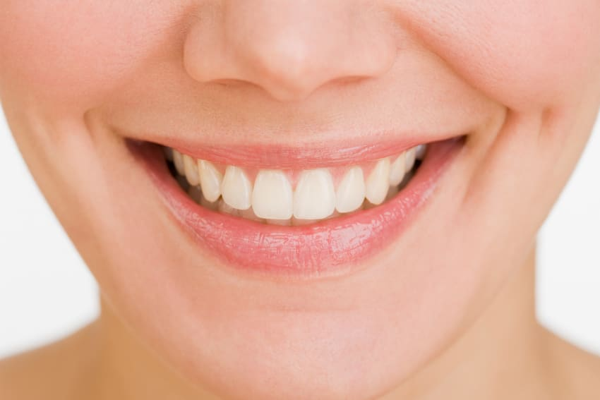 Vunder Orthodontics Erwachsene Festsitzende Zahnspange innen