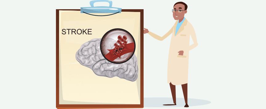 life insurance stroke
