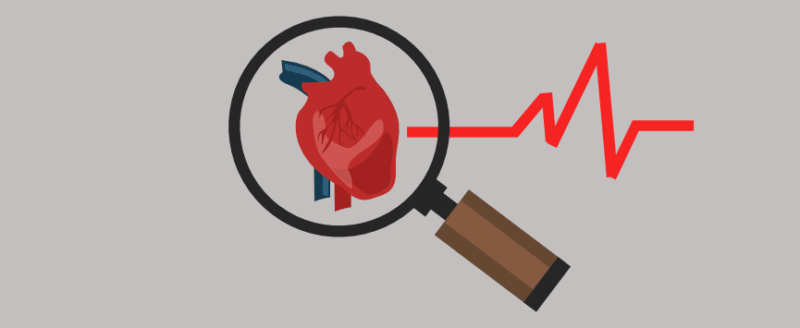 life insurance cardiomyopathy
