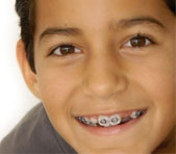 Have Dental Insurance Cant Afford Braces For Child