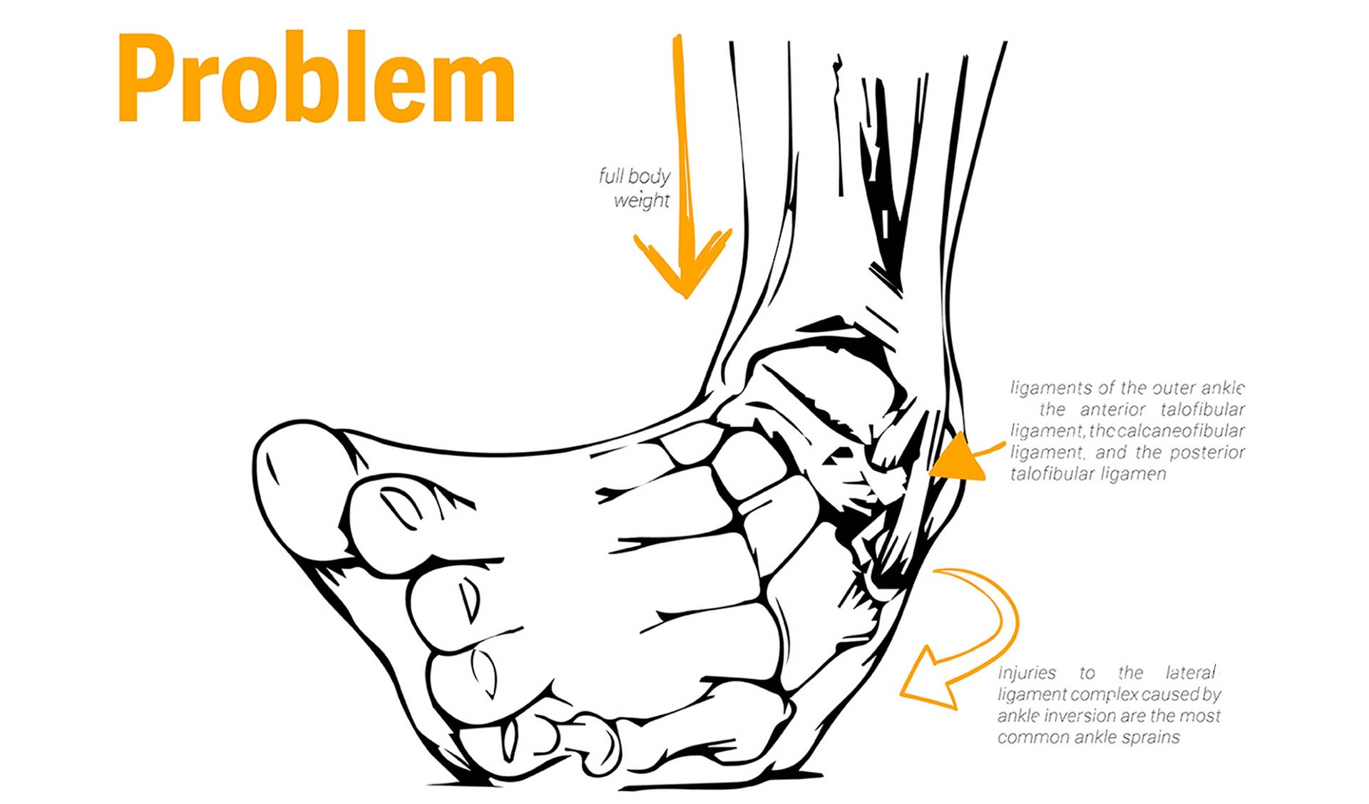 85% of ankle injuries are lateral ankle sprains