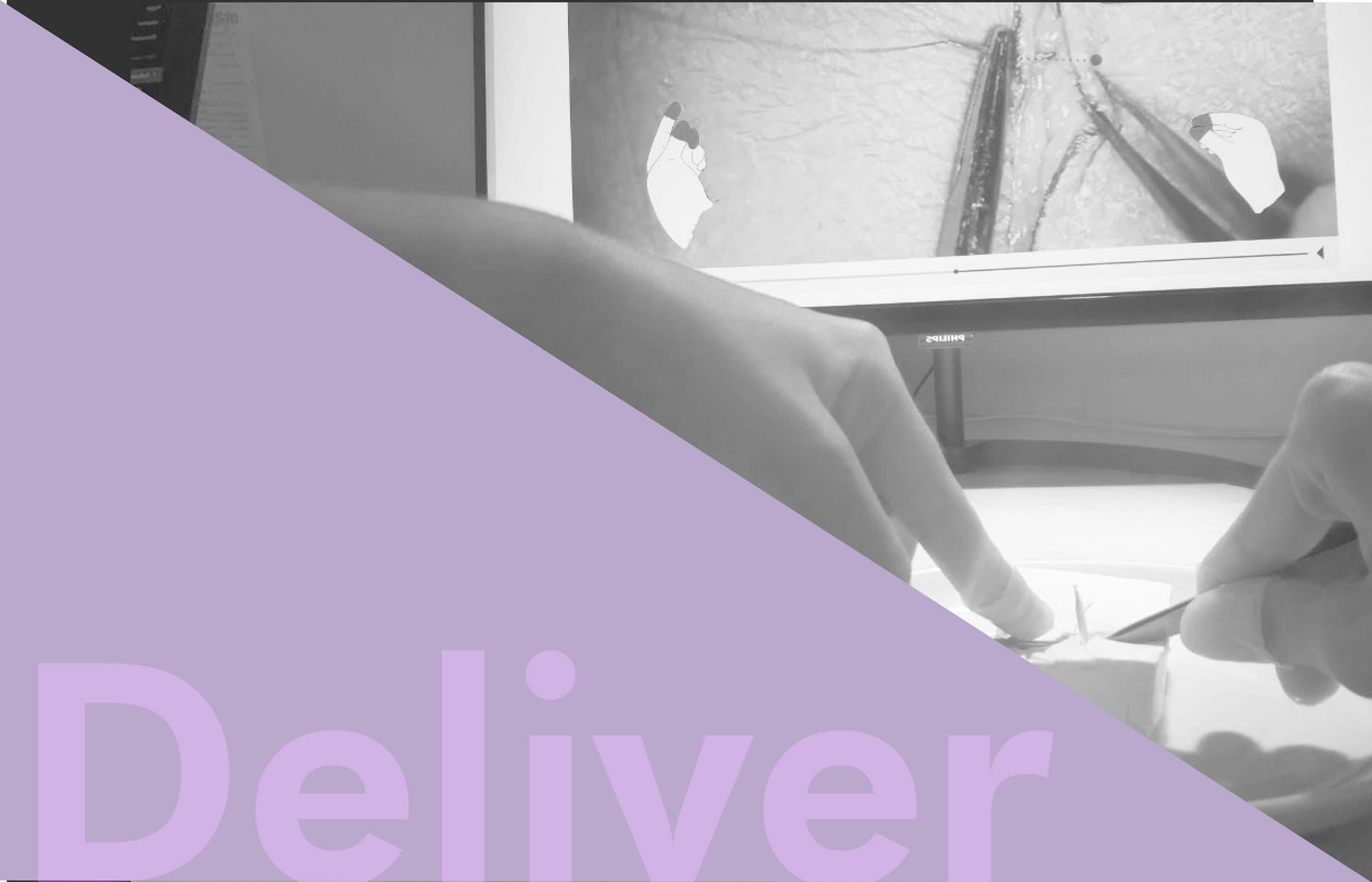 _Deliver