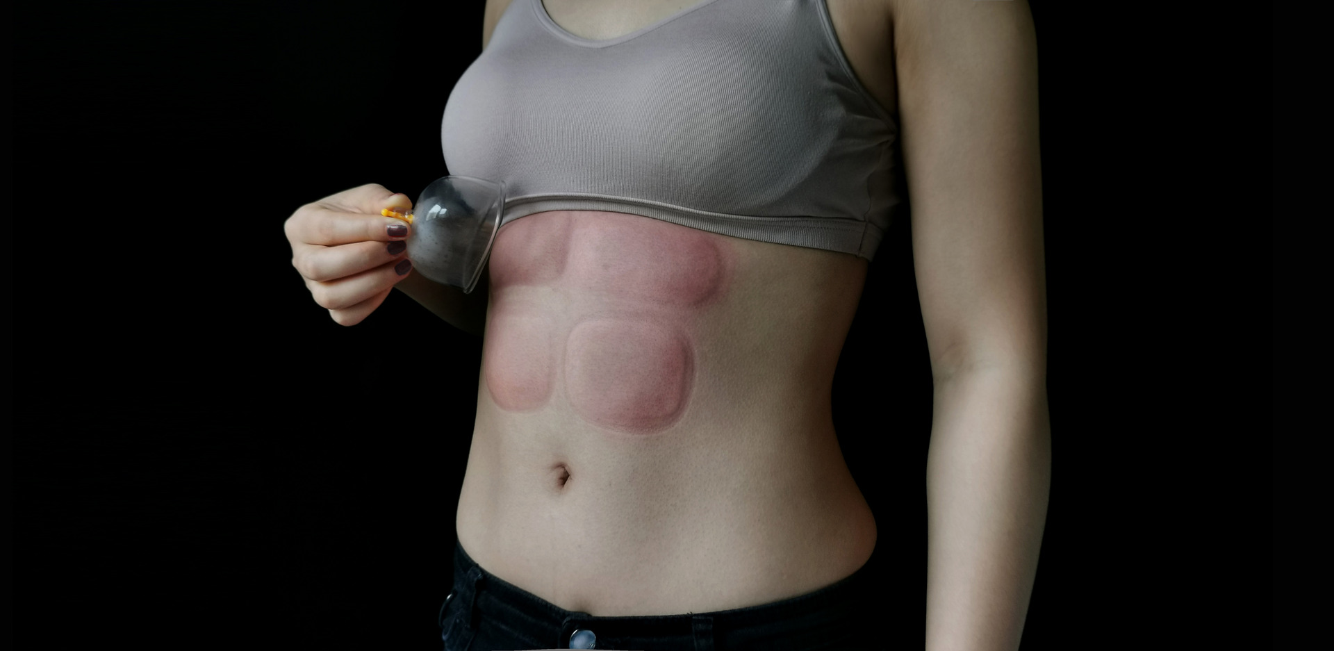 Cupping therapy on abs