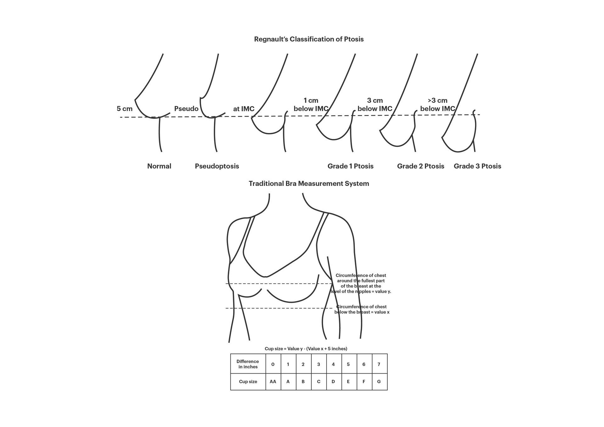 Regnault's Classification of Ptosis and the Traditional Bra Measurement System
