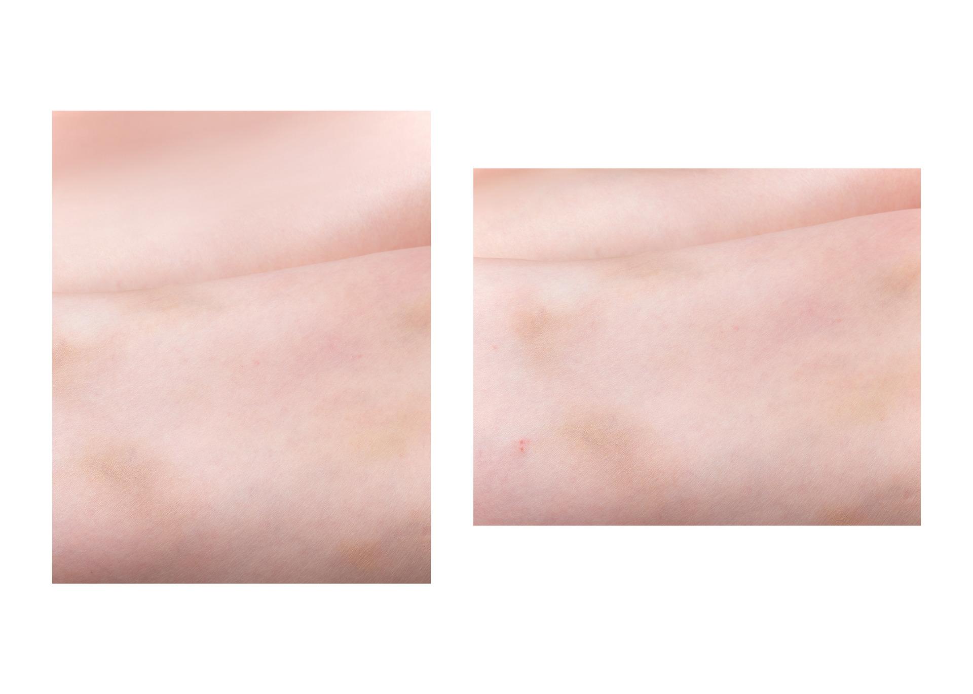 Bruise 1 (2021) / Bruise 2 (2021)