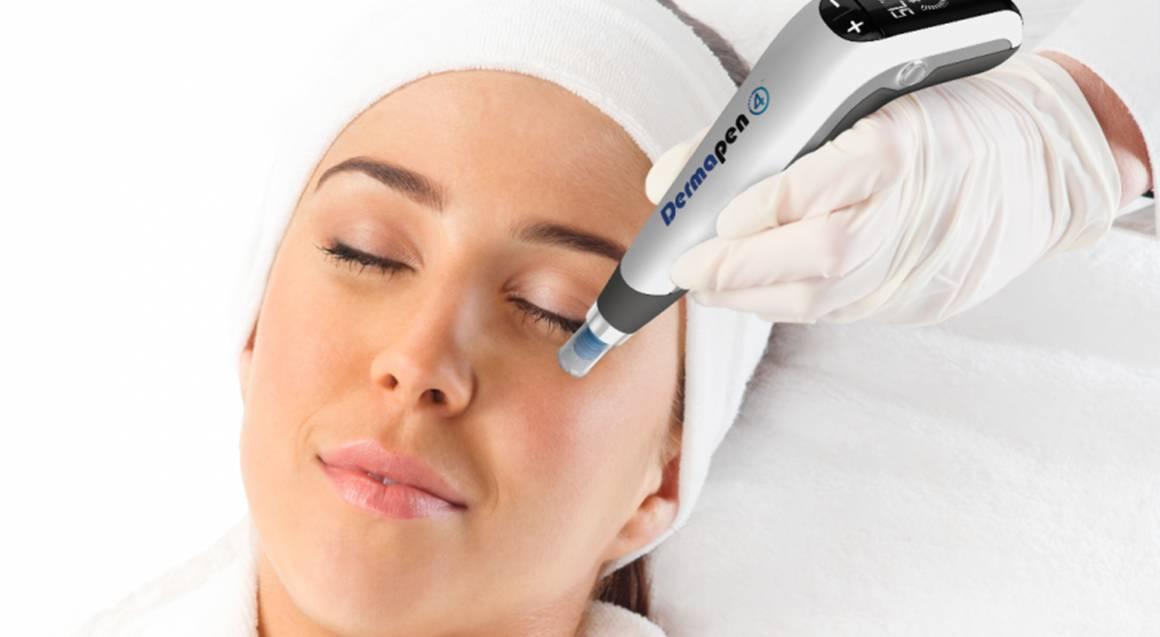 Advanced Skin Needling - 50 Minutes
