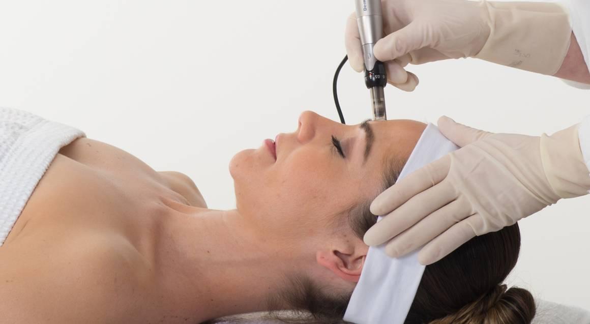 Advanced Skin Needling