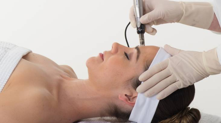 RedBalloon Advanced Skin Needling - Coomera