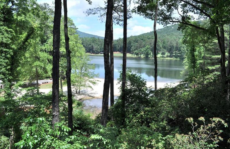 Rental lake view at Mountain Vista Rentals.
