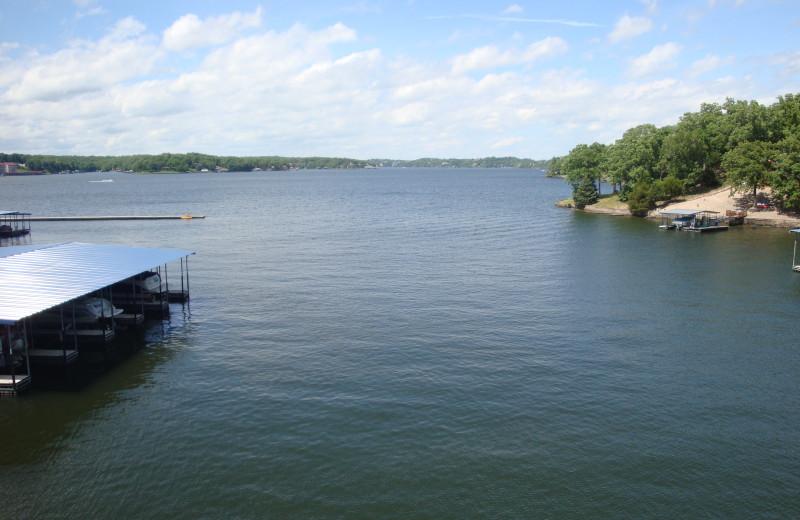 Lake view at Parkview Bay and Tower Condos.