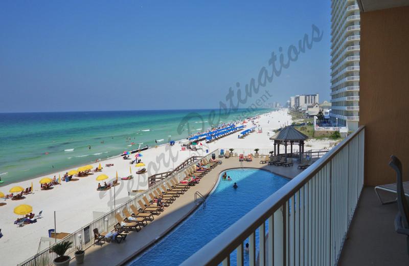 Rental balcony view at Resort Destinations.