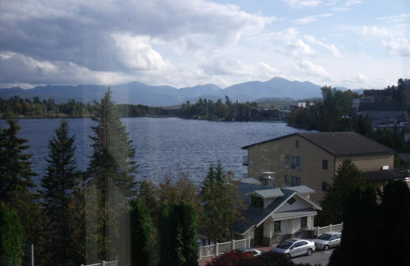 Lake view at Lake Placid Accommodations.