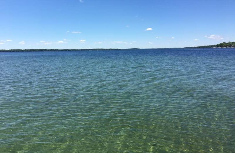 Lake at Pelican Beach Resort.