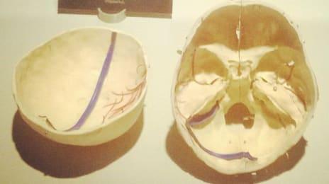 În momentul în care îți dai seama cât de fragili suntem, și că oasele craniului sunt foarte subțiri, atunci realizezi care este valoarea educativă a expoziției #ourbody. #viataincluj #cluj #iuliusmall