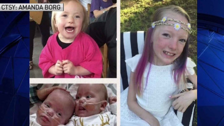 Girl's Medical Fight Inspires 'Just for J' 5K