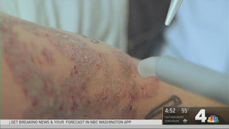 Tattoo Removal and Replacement a Growing Industry