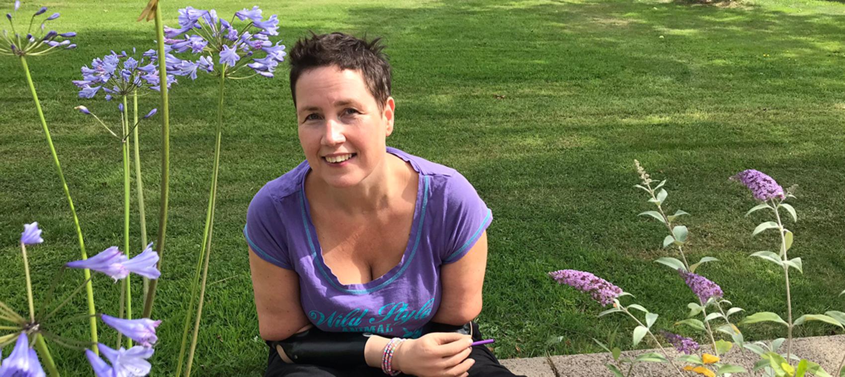 Kvinne med proteser på begge armene sitter ved en grønn plen.