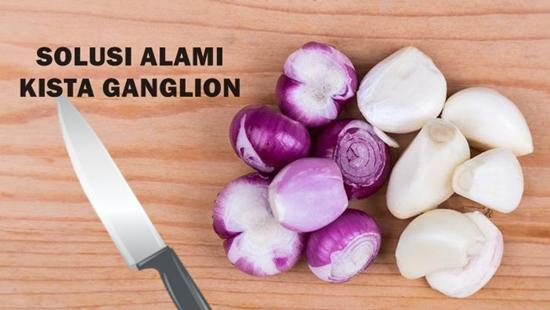 Manfaat Bawang Merah dan Bawang Putih Untuk Ganglion