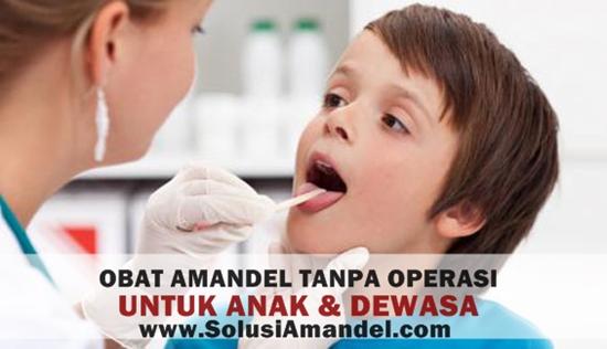 Cara Mengatasi Infeksi Amandel