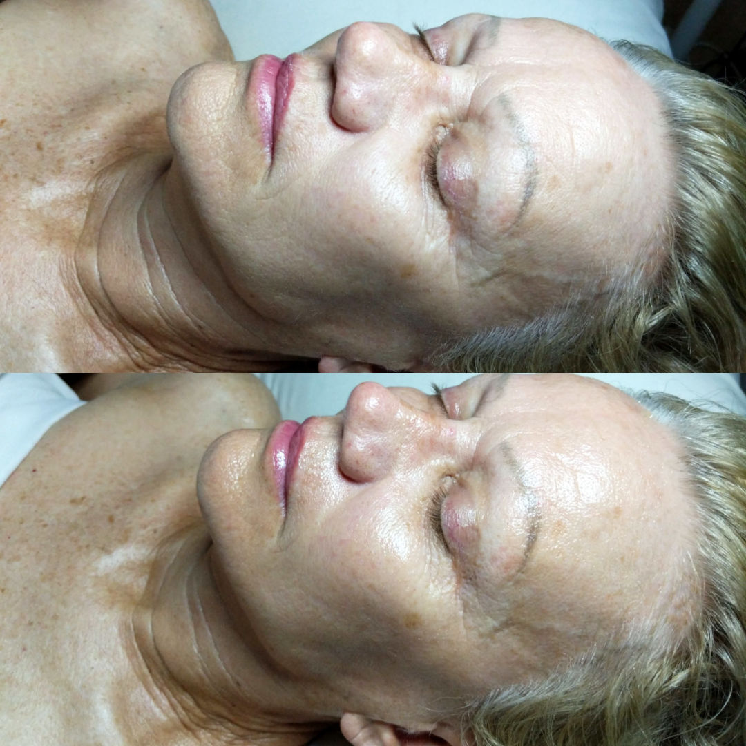 Before (top) and after (bottom) a Qi beauty treatment.