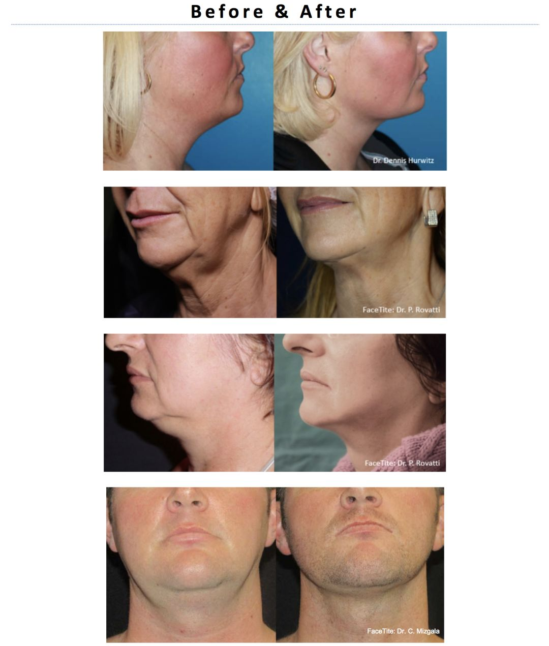 The Minimally Invasive Facelift Alternative | Houstonia