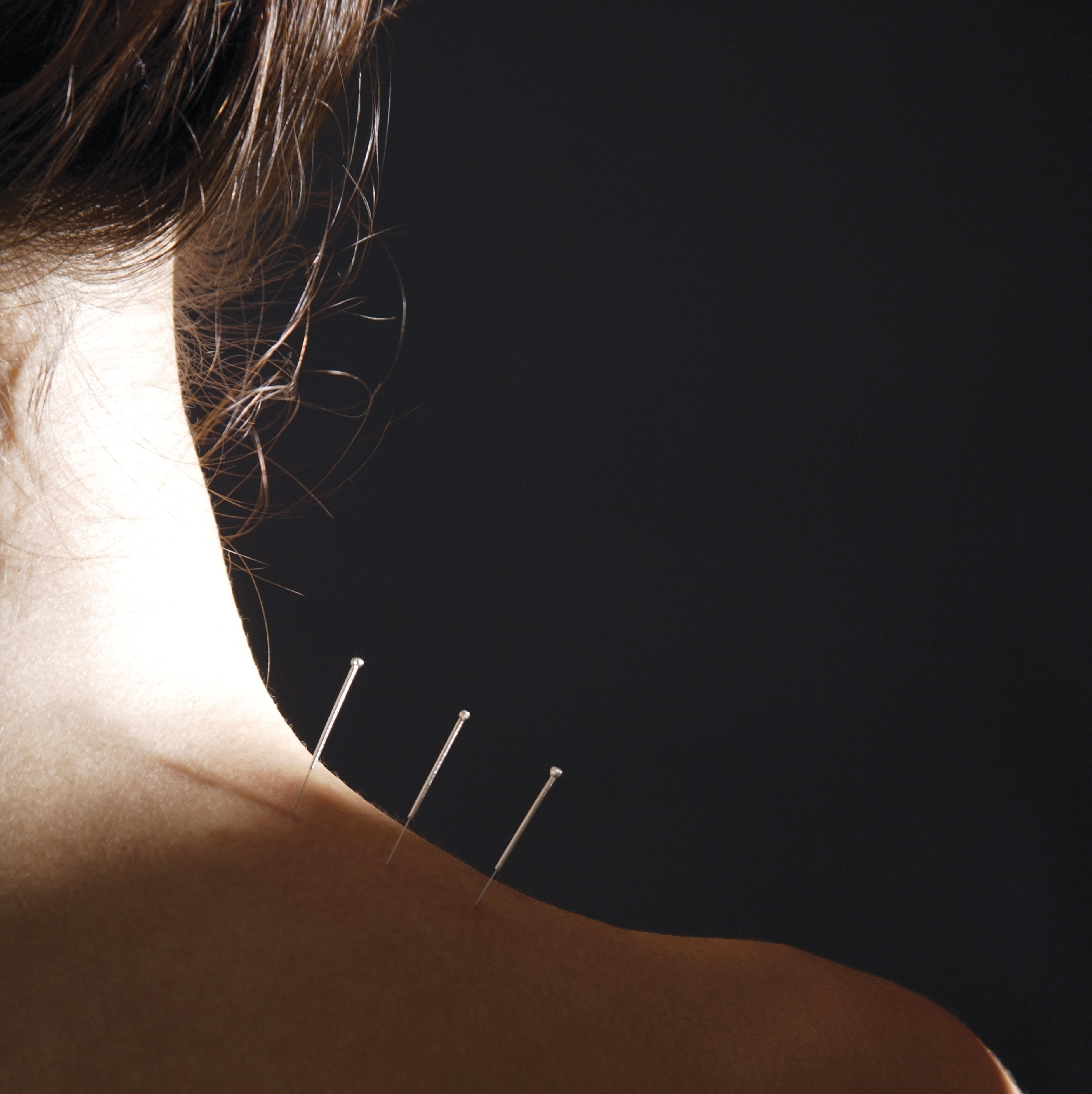 0617 alt medicine acupuncture dzbaq1