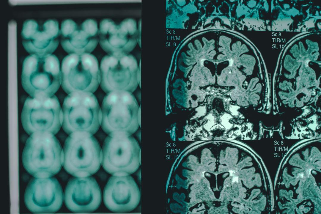 Alzheimer's Disease as shown on a MRI.