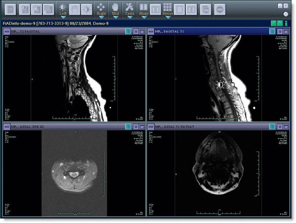 03 060 breast scan z0mbwv
