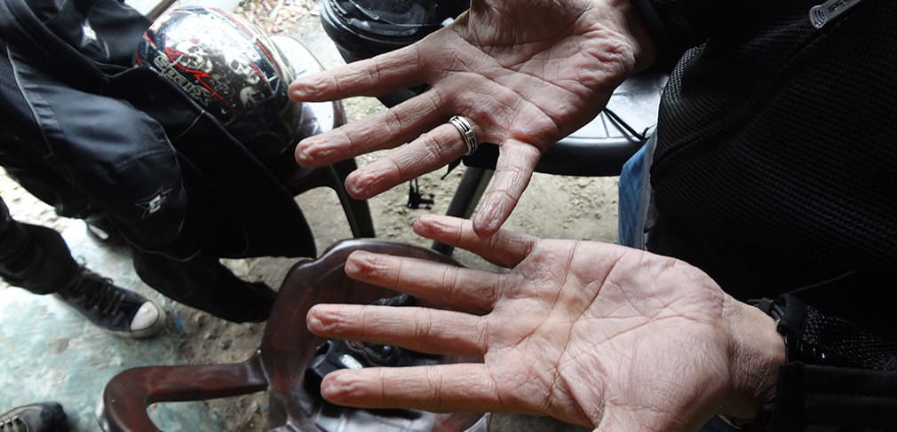 Bala_Hands_After_Rains_in_Gloves