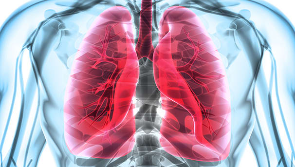 Pulmonary Medicine Image
