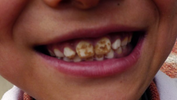 Support the Hispanic Student Dental Association (HSDA) Image