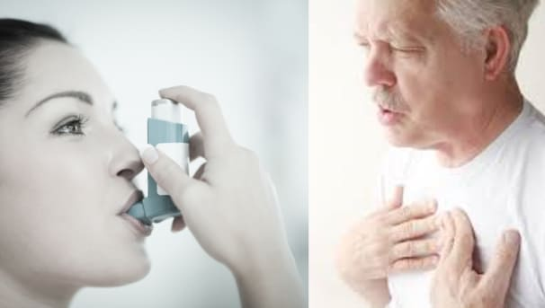 University of Sydney research into acute severe asthma Image