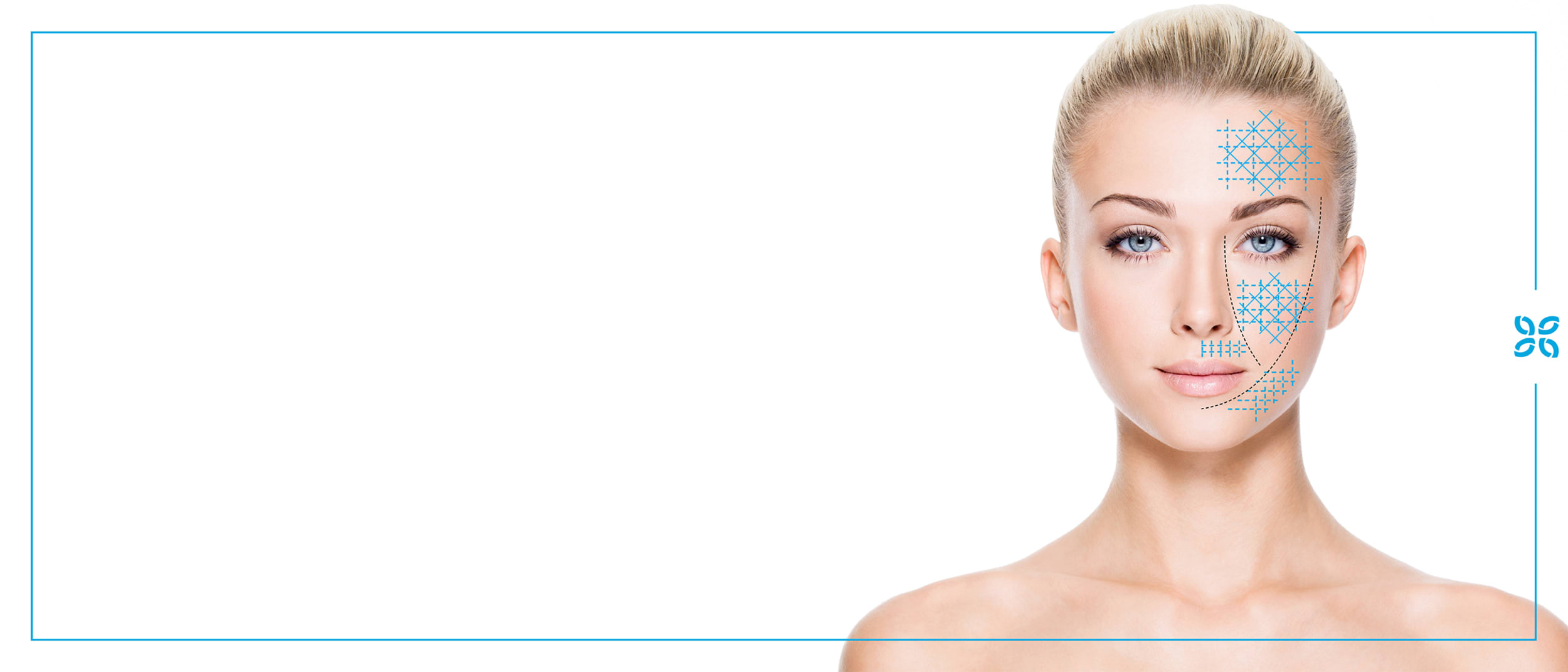 The Cosmetic Clinic: micro-needling reduced from $299 to $199